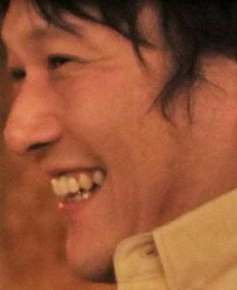 小林顕作 差し歯