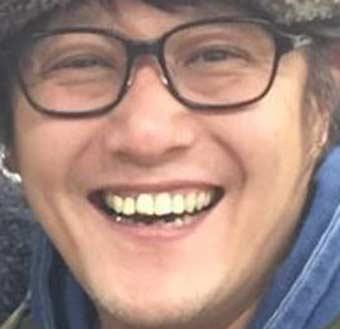 小林顕作 前歯