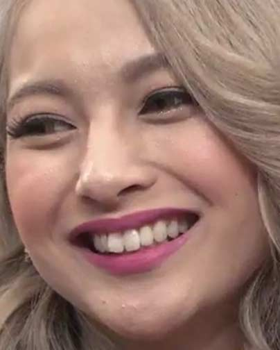 木村有希 前歯