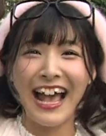 綾川ひなの 歯