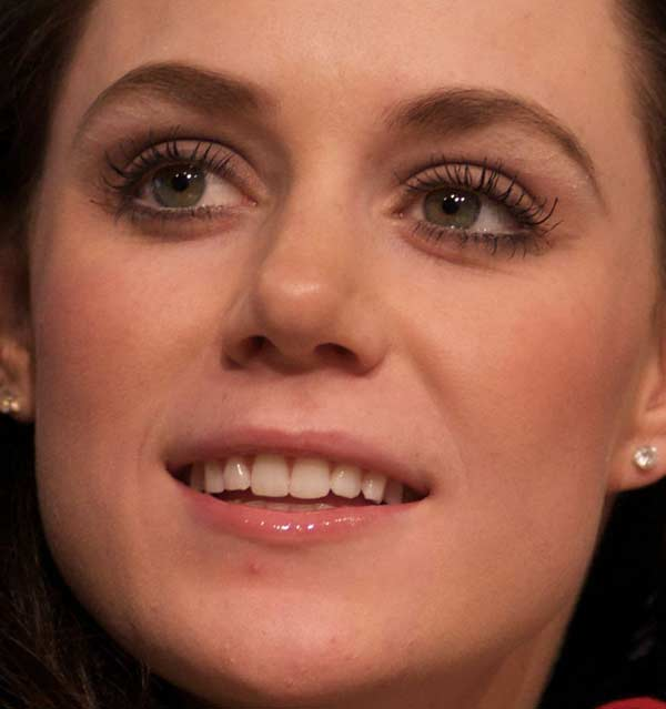 Tessa Virtue teeth