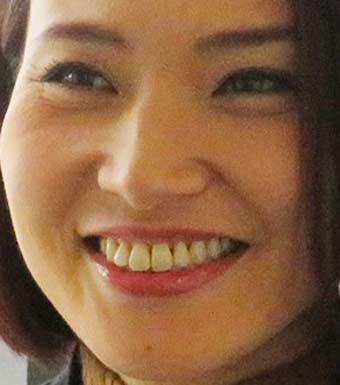 金子恵美 前歯
