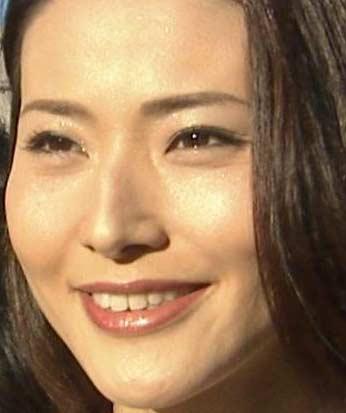 金子恵美 歯並び