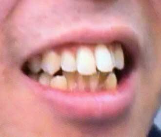 草薙航基 前歯