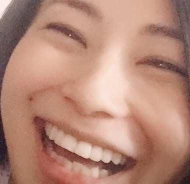 菅井玲 歯並び