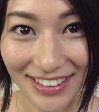 菅井玲 前歯