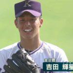 吉田輝星選手の前歯や歯並びを批評(マウスピース、すきっ歯)