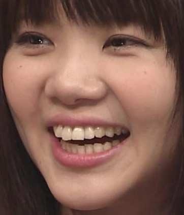 吉岡聖恵 前歯