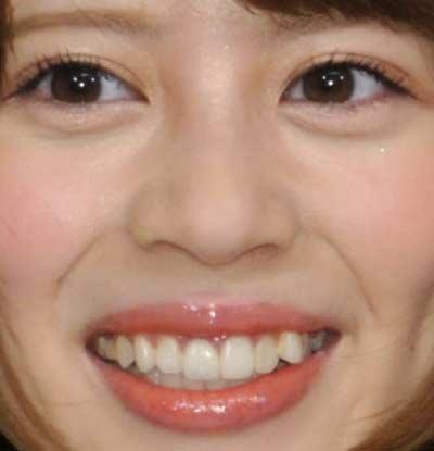 吉崎綾 八重歯