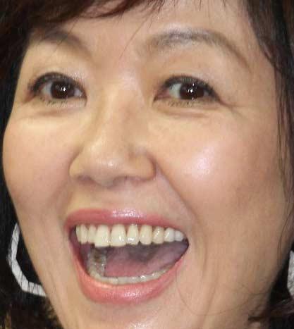 浅田美代子 前歯