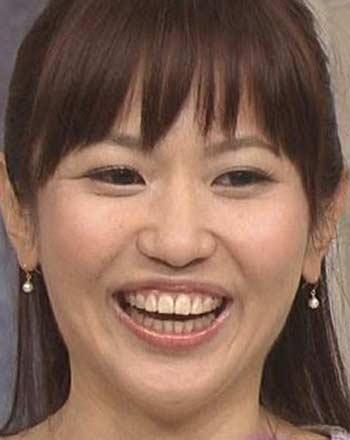 三輪記子 前歯