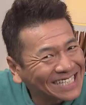 上田晋也 前歯