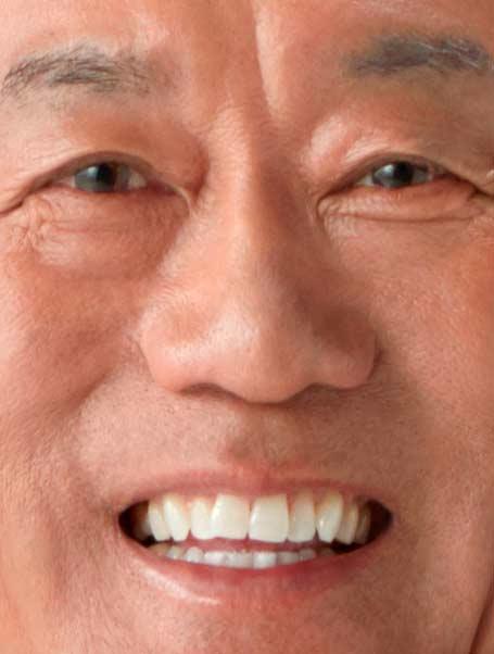 三遊亭圓楽 前歯