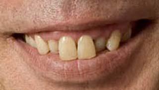 イッセー尾形 前歯