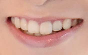 天明麻衣子 歯並び