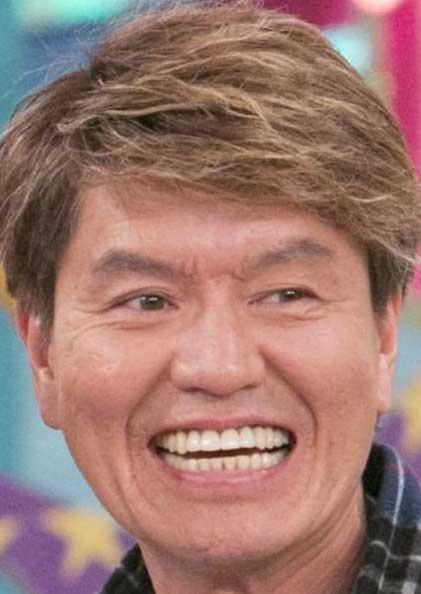 ヒロミ 前歯