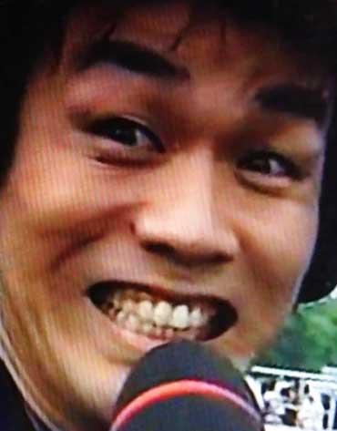 森崎博之 前歯