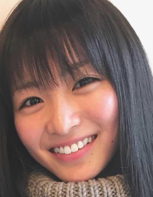岡崎紗絵 ホワイトニング