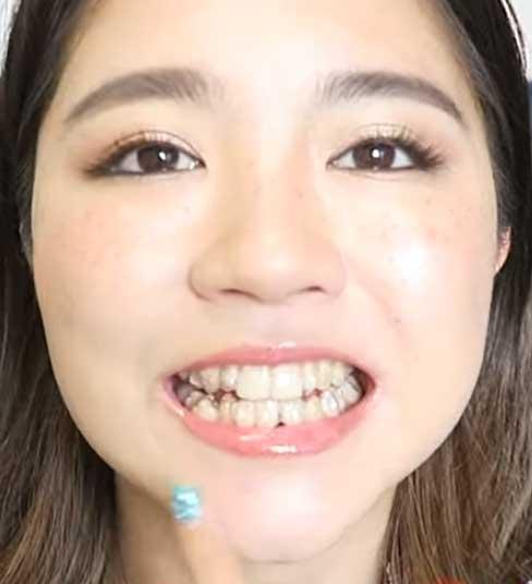 Shione 歯並び