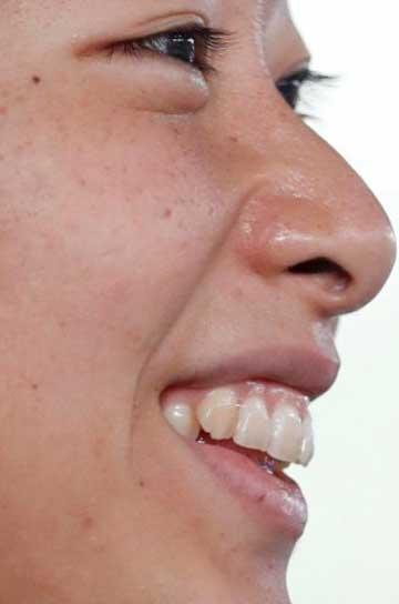 鈴木聡美 犬歯