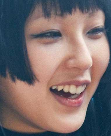 DAOKO 歯並び