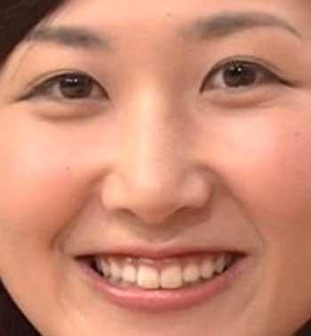 桑子真帆 前歯