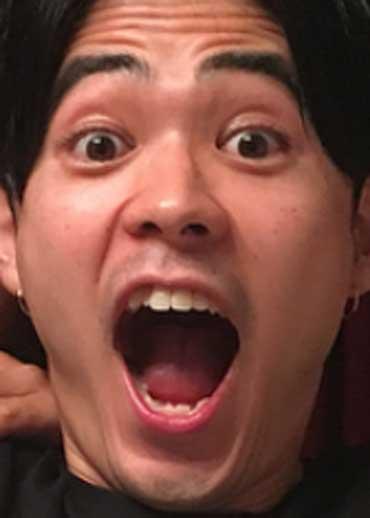 成田凌 前歯