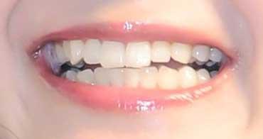尾崎由香 前歯