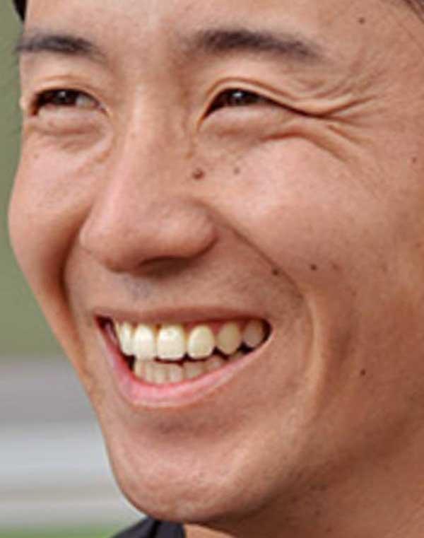 斎藤佑樹 歯並び