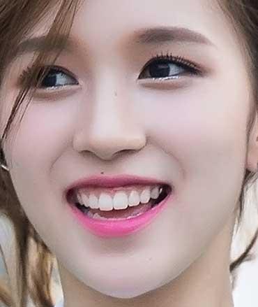 TWICE MINA 銀歯