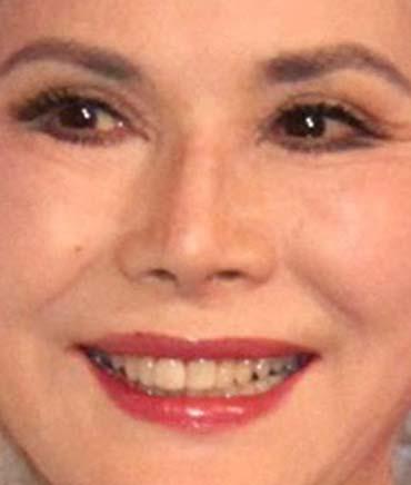 デヴィ夫人 前歯