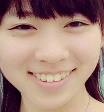 新井希美 前歯