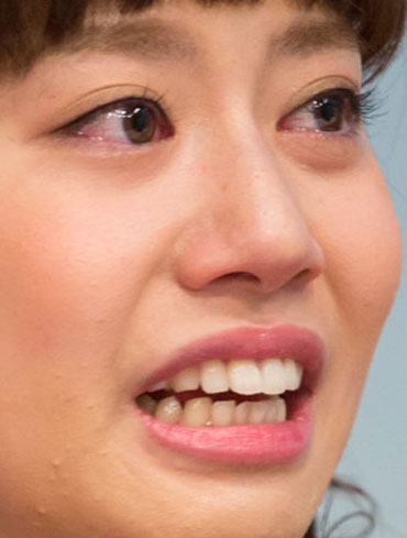 小野あつこ 歯