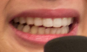 小野あつこ 前歯