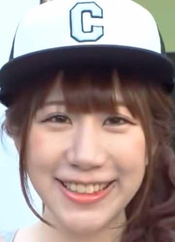 小野早稀 歯