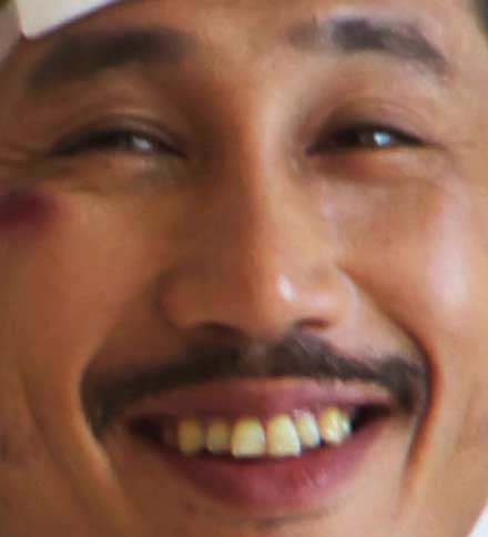 渋川清彦 歯