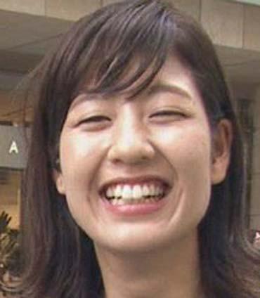 桝田沙也香アナウンサー 歯