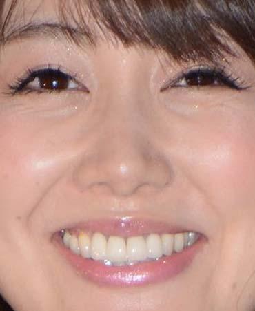安めぐみ 前歯