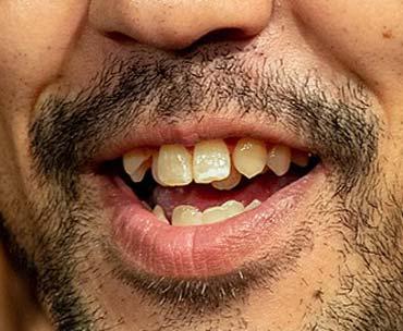 濱津隆之 歯並び
