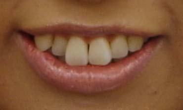 和久津晶 歯並び