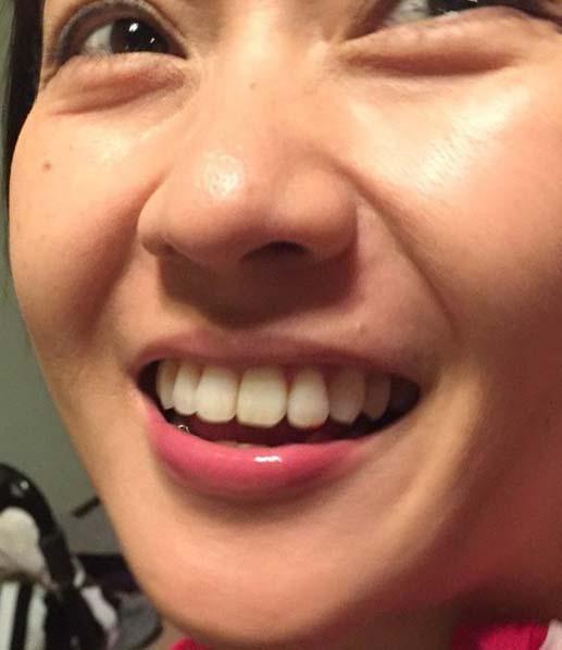 あだち理絵子 歯