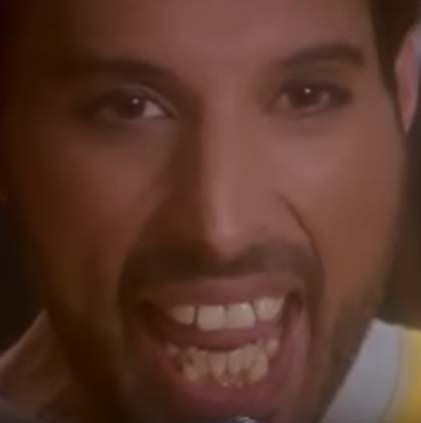 Freddie Mercury Mesiodentes