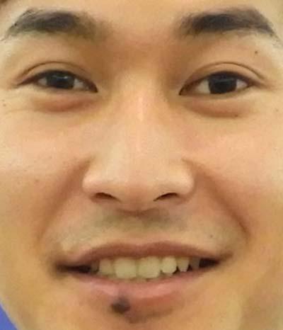 飯塚翔太 歯並び
