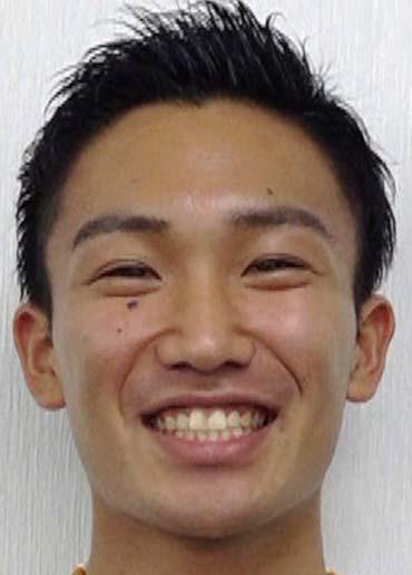 桃田賢斗 歯