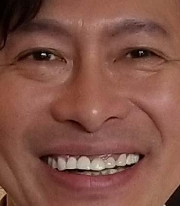 鈴井貴之 前歯