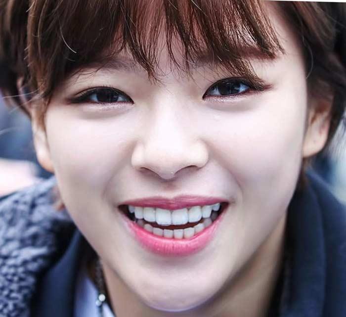 Jeong Yeon TWICE 前歯