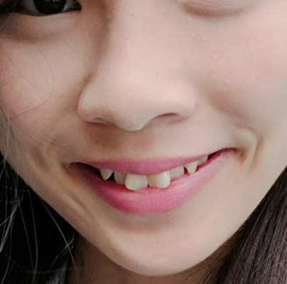 アグネス・チョウ 歯並び