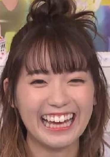 斉藤朱夏 歯並び