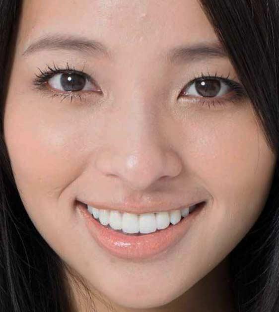 水崎綾女 前歯