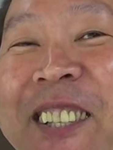 立花孝志 前歯